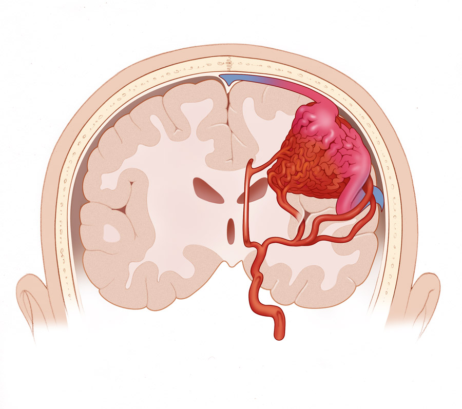 Arteriovenous Malformation Medlibes Online Medical Library