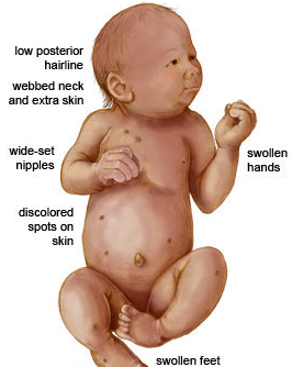 Turner's syndrome — Medlibes: Online Medical Library