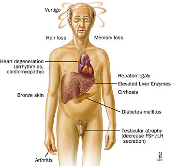 hypogonadism caused by steroids