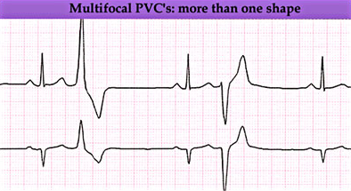 premature ventricular contractions medlibes online medical library