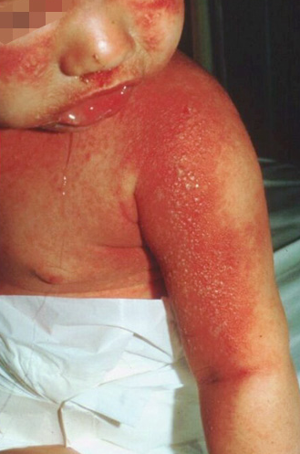 Staphylococcal scalded-skin syndrome