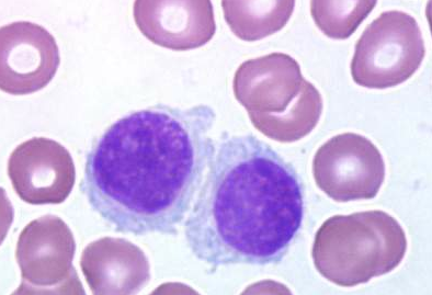 was all hairy cell and other b cell leukemias with