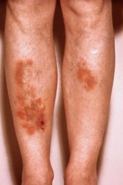 steroids causing skin rash
