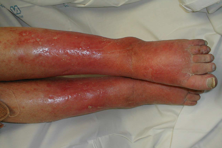 Streptococcal Skin Infections - ATSU