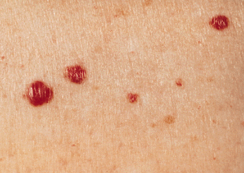 adults Hemangioma in