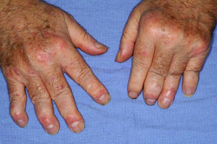 images.rheumatology.org