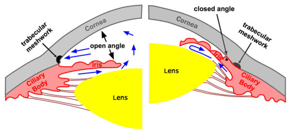 Acute angle closure glaucoma — Medlibes: Online Medical Library