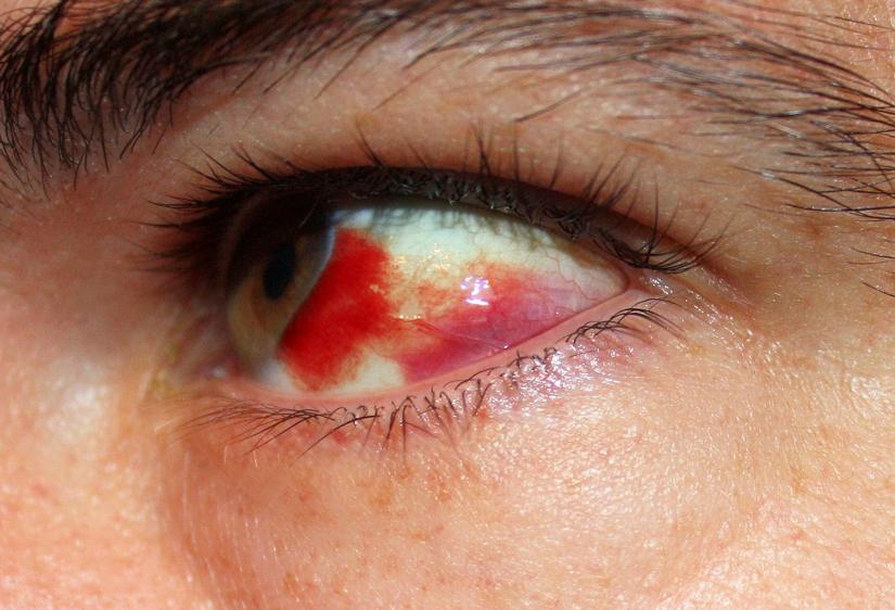 subconjunctival hemorrhage — medlibes: online medical library, Skeleton