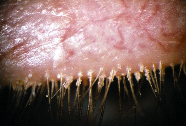 ketoconazole shampoo for seborrheic dermatitis