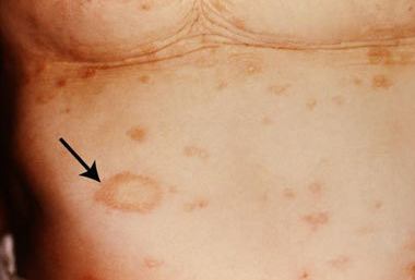 Pityriasis Rosea Medlibes Online Medical Library